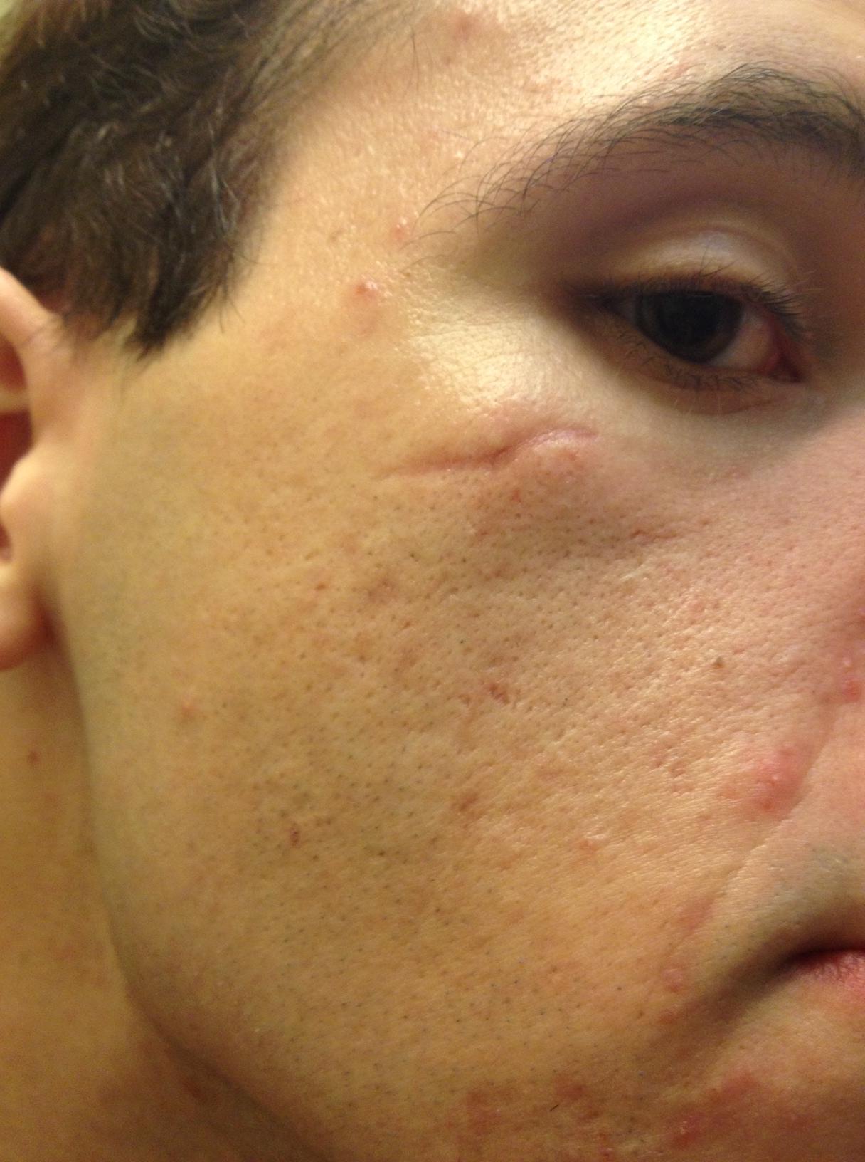 Facial laceration suture